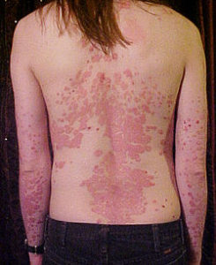 250px-Psoriasis_on_back