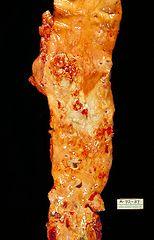154px-Atherosclerosis,_aorta,_gross_pathology_PHIL_846_lores